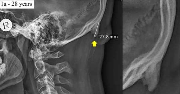STUDIMI/ Smartfonët po ndryshojnë skeletin e njeriut