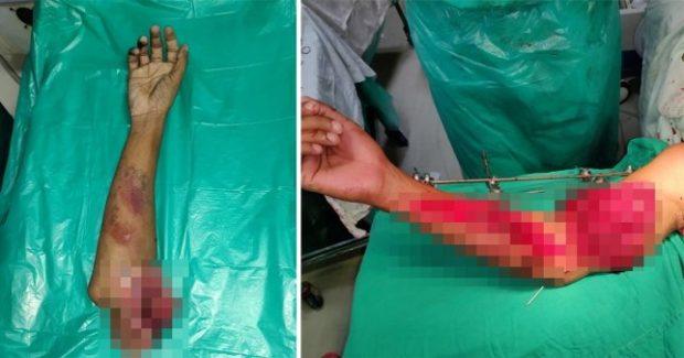 MREKULLI/ Treni i këput krahun, mjekët ia rivendosin  (FOTO)