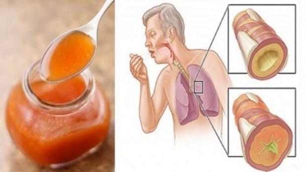 DUHET TI DINI/ Pijet natyrale që eliminojnë mukozën e gëlbazën përbrenda minutave