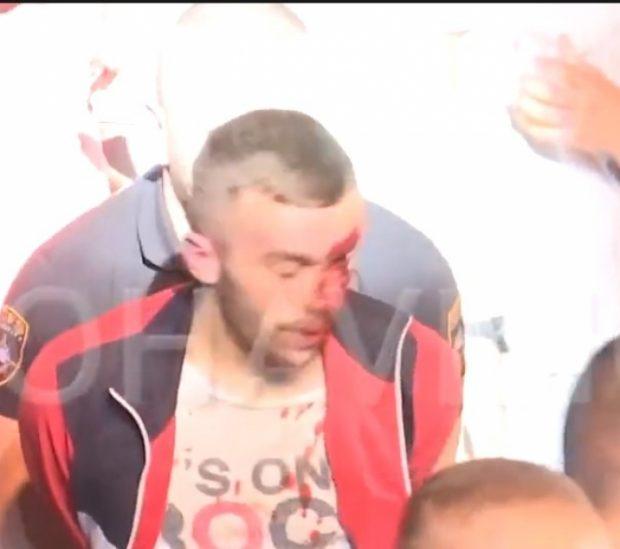 PËRLESHJE MES DY TË RINJVE/ Koncerti i Alban Skënderaj përgjaket, detyrohet…  (VIDEO)