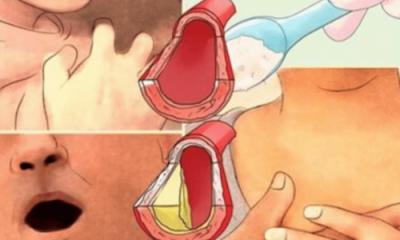 """PIJA """"MAGJIKE""""/ Ja si mund të ulni presionin e lartë të gjakut dhe të zhbllokoni arteriet"""