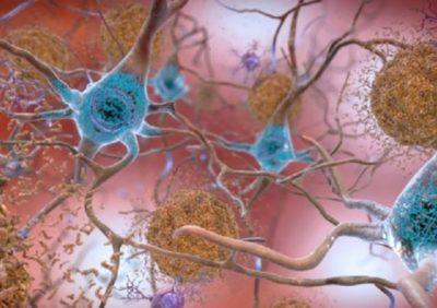 PËRKTHEN SINJALET ELEKTRIKE/ Zbulohet deshifruesi i trurit, në kohë reale…