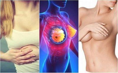 TREGOHUNI TË KUJDESSHME! Ja shenjat që paralajmërojnë kancerin e gjirit