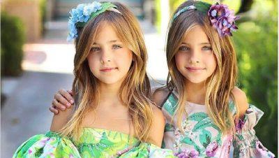 TË MREKULLUESHME/ Shikoni si duken binjaket më të bukura në botë