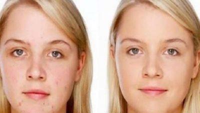 PROVOJENI/ Maska natyrale që ju ndihmon të eliminoni shenjat e mbetura nga aknet