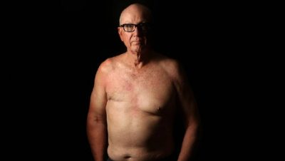 E PAZAKONTË POR E VËRTETË/ Kanceri i gjirit prek edhe burrat (FOTO)