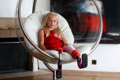 E MREKULLUESHME/ Historia e vajzës me këmbë të prera që shkëlqeu në pasarelën në Paris