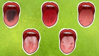 A I DINIT? Ja 7 probleme shëndetësore që tregon gjuha juaj