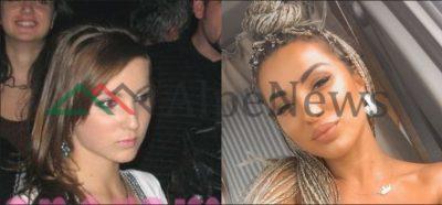 """NDRYSHIM """"DRASTIK""""/ Shihni si ka qenë Roza Lati para operacioneve plastike (FOTO)"""