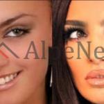 PARA DHE PAS OPERACIONEVE/ Ja si dukej Genta Ismajli vite më parë dhe krahasimi sot