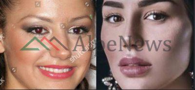 ËSHTË ISH MIS SHQIPËRIA/ Shikoni sa e kanë ndryshuar operacionet plastike Suada Sherifin (FOTO)