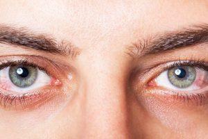 JINI TË KUJDESSHËM/ Ja cilat janë problemet shëndetsore që tregojnë sytë
