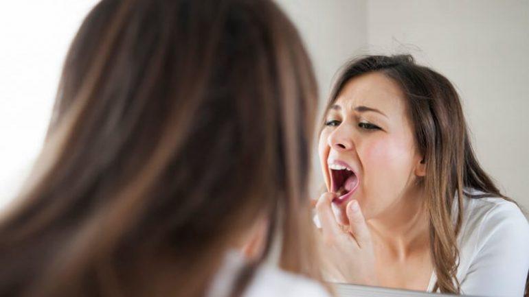 NUK DUHET TI ANASHKALONI! Këto janë problemet e shëndetit që fshihen pas mishrave të errët të dhëmbëve