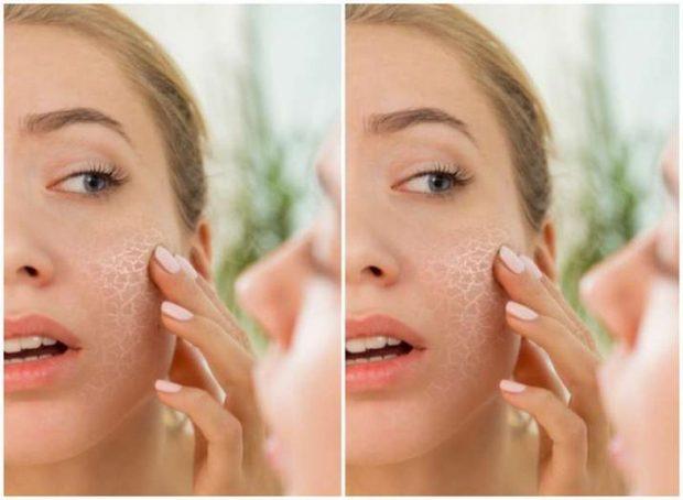 PËR NJË LËKURË TË BUKUR/ Dermatologët këshillojnë: 5 produkte që s'duhet t'i përdorni nga tetori në shkurt