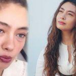 NË RREZIK PËR JETËN/ Aktorja e njohur turke dërgohet me urgjencë në spital, i përkeqësohet gjendja shëndetësore
