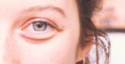 VËMËNDJE! Sekretet që do ju shpëtojnë nëse i keni sytë të fryrë në mëngjes kur zgjoheni