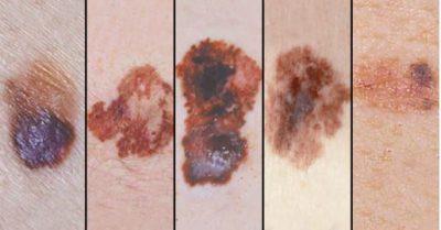 MASAT/ Sa ndikon dielli në shfaqjen e melanomës?