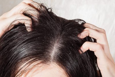 MOS I LANI PËRDITË/ Ja çfarë duhet të bëni kur keni flokë me yndyrë
